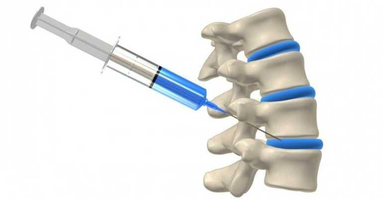 Блокада пояснично крестцового отдела позвоночника что это такое Лечение поясничного отдела