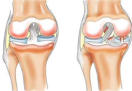 Что делать если не сгибается колено