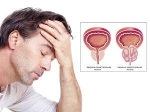Что делать при боли в низу живота и пояснице у женщины