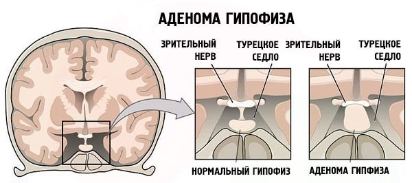 Что такое акромегалия и какие способы лечения существуют