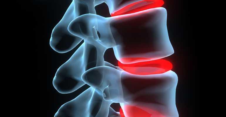 Артроз дугоотросчатых суставов - причины, симптомы и лечение
