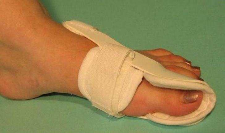 Изображение - Воспаление плюснефалангового сустава стопы лечение chto-takoe-artroz-plyusnefalangovogo-sustava-1-pal-ca-stopy-i-kak-s-etim-borot-sya-2