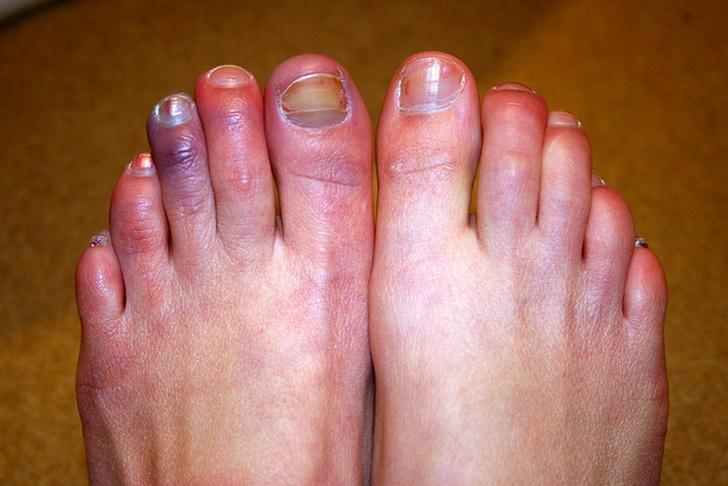 Изображение - Воспаление плюснефалангового сустава стопы лечение chto-takoe-artroz-plyusnefalangovogo-sustava-1-pal-ca-stopy-i-kak-s-etim-borot-sya-3