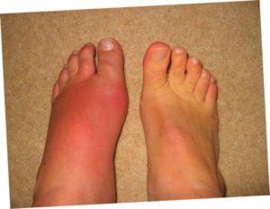 Изображение - Воспаление плюснефалангового сустава стопы лечение chto-takoe-artroz-plyusnefalangovogo-sustava-1-pal-ca-stopy-i-kak-s-etim-borot-sya-4