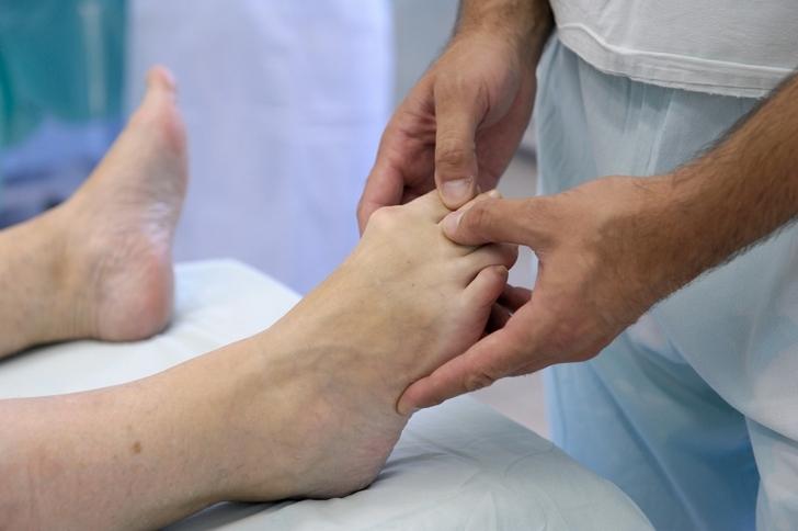 Изображение - Воспаление плюснефалангового сустава стопы лечение chto-takoe-artroz-plyusnefalangovogo-sustava-1-pal-ca-stopy-i-kak-s-etim-borot-sya-7