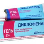 Изображение - Воспаление плюснефалангового сустава стопы лечение chto-takoe-artroz-plyusnefalangovogo-sustava-1-pal-ca-stopy-i-kak-s-etim-borot-sya-9