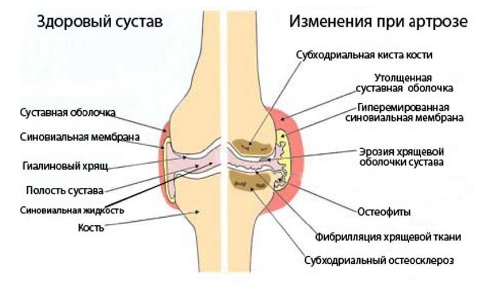 Что такое асептический некроз головки бедренной кости и чем опасно состояние