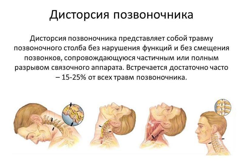 Что такое дисторсия шейного отдела позвоночника как лечится заболевание