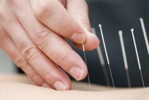 Что такое дорзальная диффузная протрузия и чем она опасна для здоровья