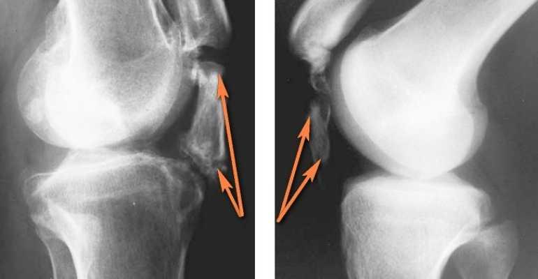 Лигаментоз коленного сустава что это такое