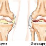 Что такое лигаментоз коленного сустава и причины его развития
