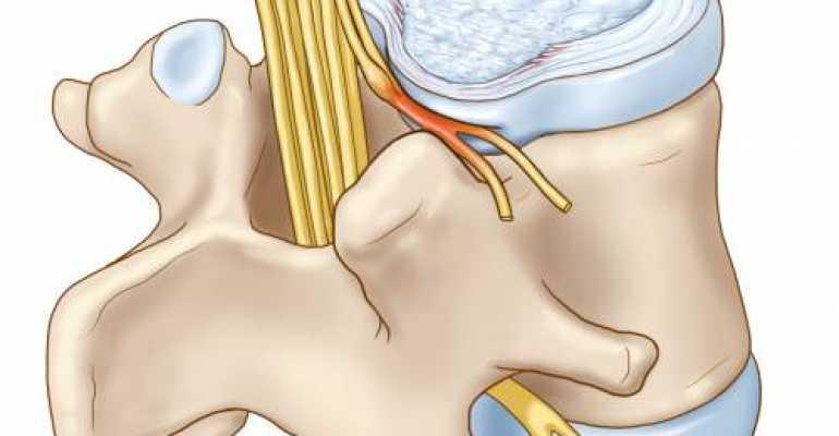 Что такое невринома позвоночника и как ее вылечить