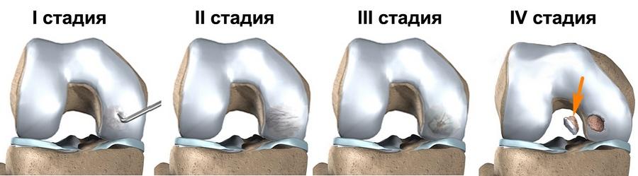 Что такое остеохондропатия и как ее лечить