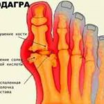 Что такое остеонекроз латерального мыщелка бедренной кости и как лечить