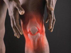Что такое серонегативный спондилоартрит и чем он опасен