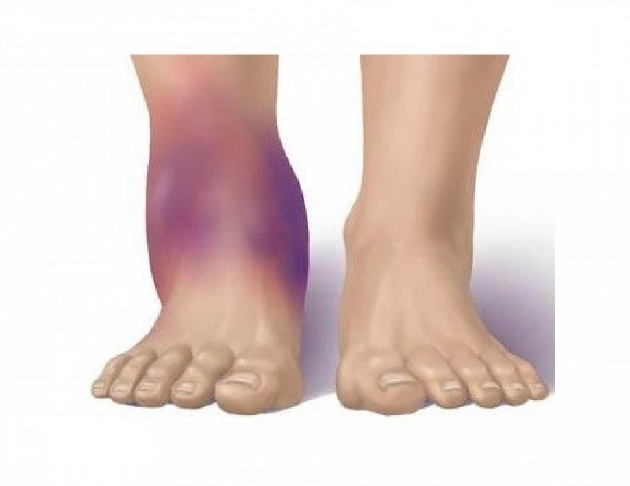 Что такое синовит голеностопного сустава и как его вылечит