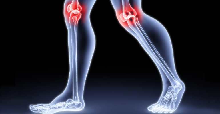 Варусная деформация коленных суставов причины