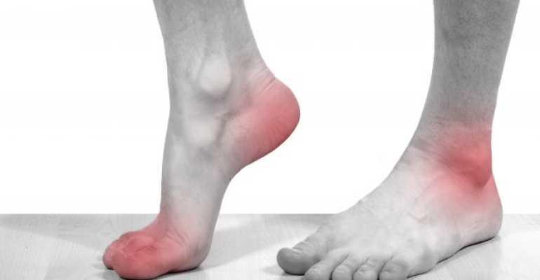 Диагностика и лечение боли в голеностопном суставе