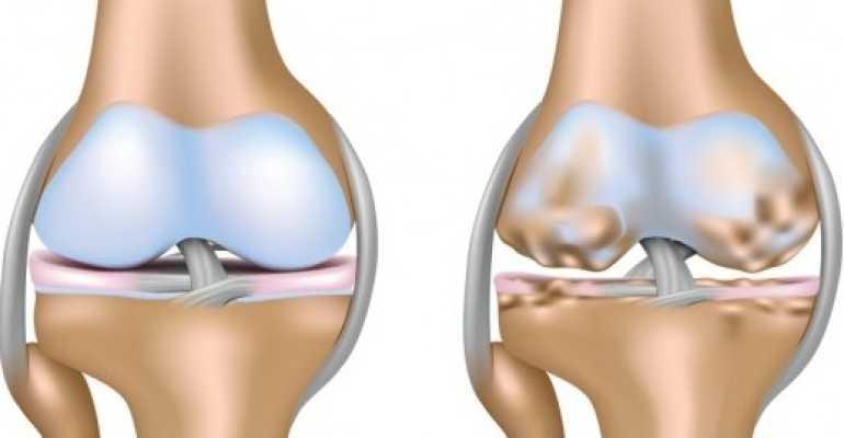 Коксартроз коленного сустава лечение медицинскими препаратами