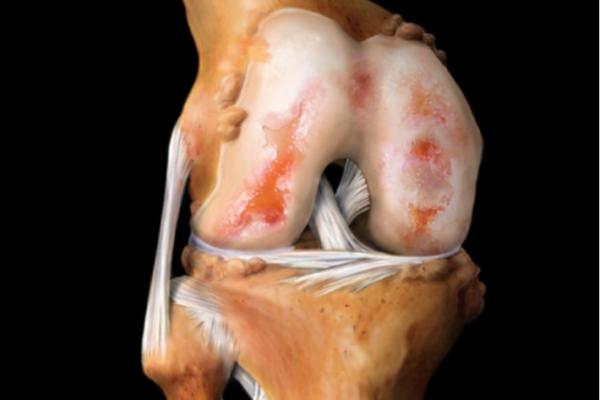 Диагностика и лечение коксартроза коленного сустава