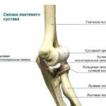 Диагностика и лечение посттравматического артрита