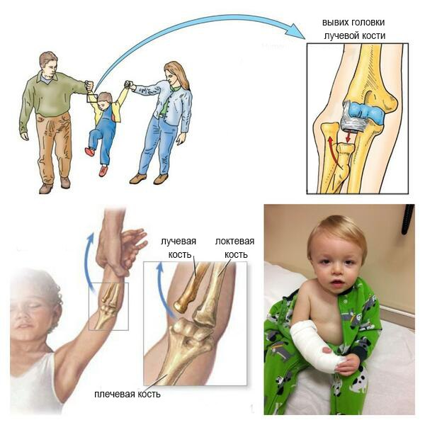 Диагностирование и лечение подвывиха головки лучевой кости у детей