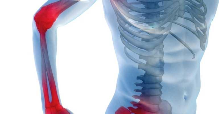 Из-за чего могут возникать боли в суставах