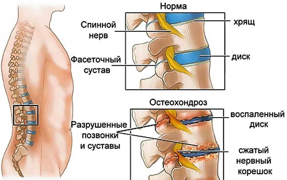Из-за чего может болеть область спины ниже поясницы