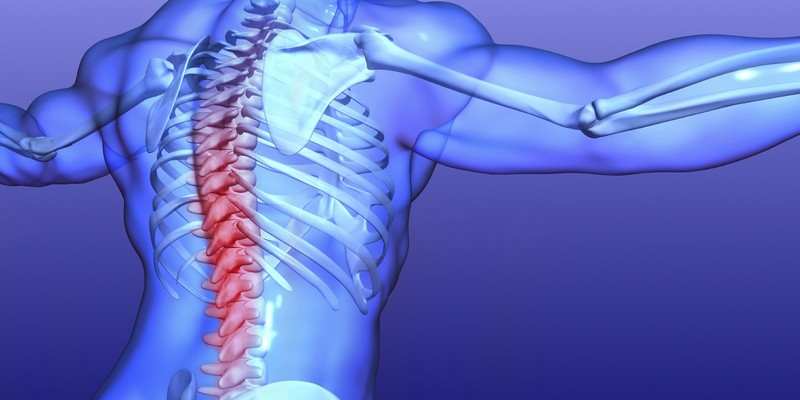Как диагностируется и лечится распространенный остеохондроз