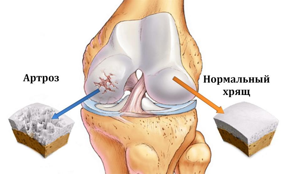 Как уменьшить боль в суставах при артрозе thumbnail