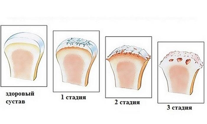 Как и чем снять боль при артрозе коленных суставов самостоятельно в домашних условиях