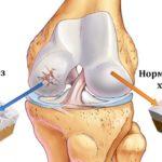 Как китайские пластыри для суставов помогают справиться с болью