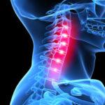 Как правильно использовать корсет для шеи при остеохондрозе