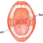 Как проявляется и лечится реактивный полиартрит