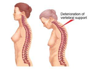 Какая симптоматика болезни Бехтерева у женщин