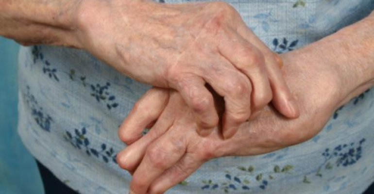 Полиартрит: что это такое, симптомы и лечение