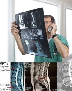 Какими диагностическими методами определить остеохондроз