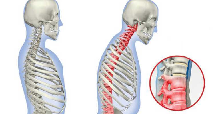 Артрит позвоночника симптомы и лечение в различных отделах спины