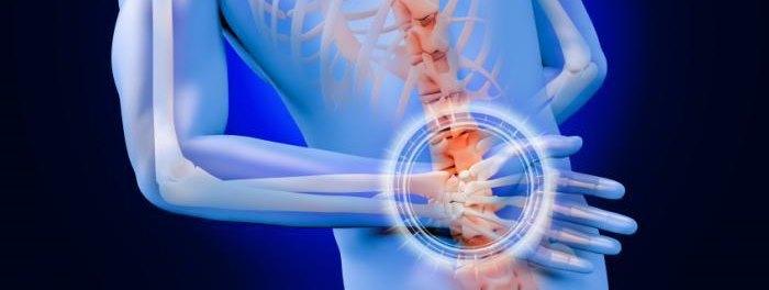 Классификация артритов позвоночника и способы их лечения