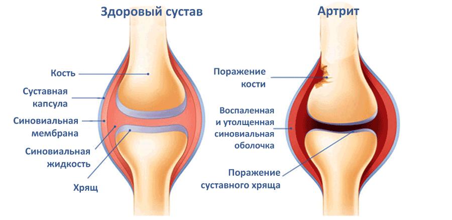Лечение действенными народными средствами артрита коленного сустава