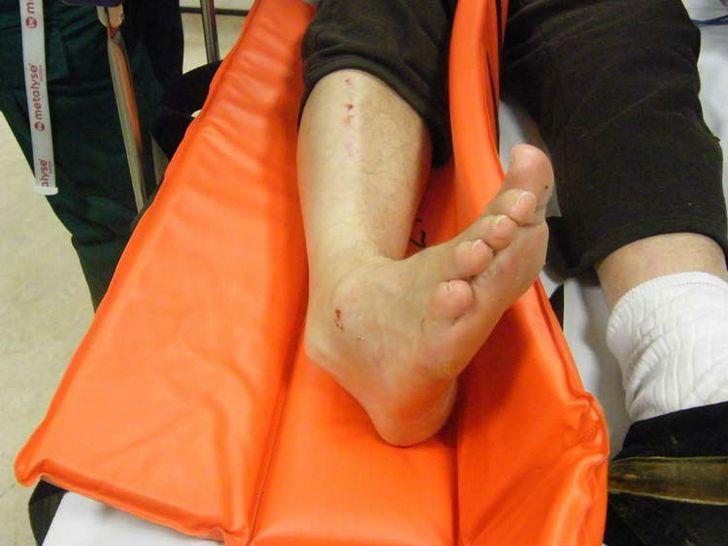 Лечение вывиха и подвывиха голеностопа