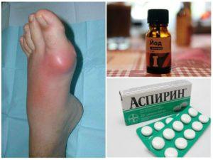 Лучший рецепт из йода и аспирина для избавления от косточек на ногах