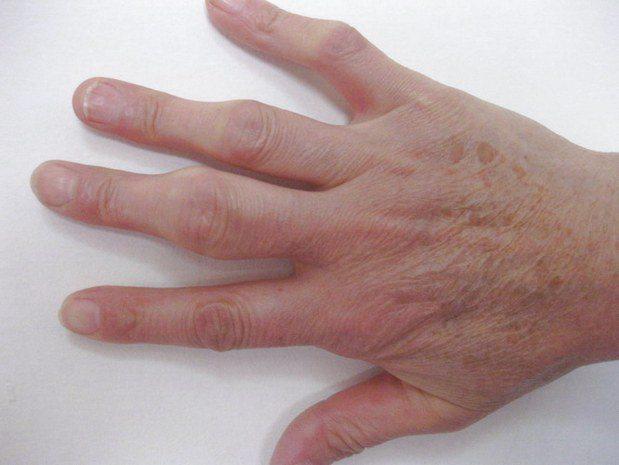 Народные средства лечения артрита кистей thumbnail