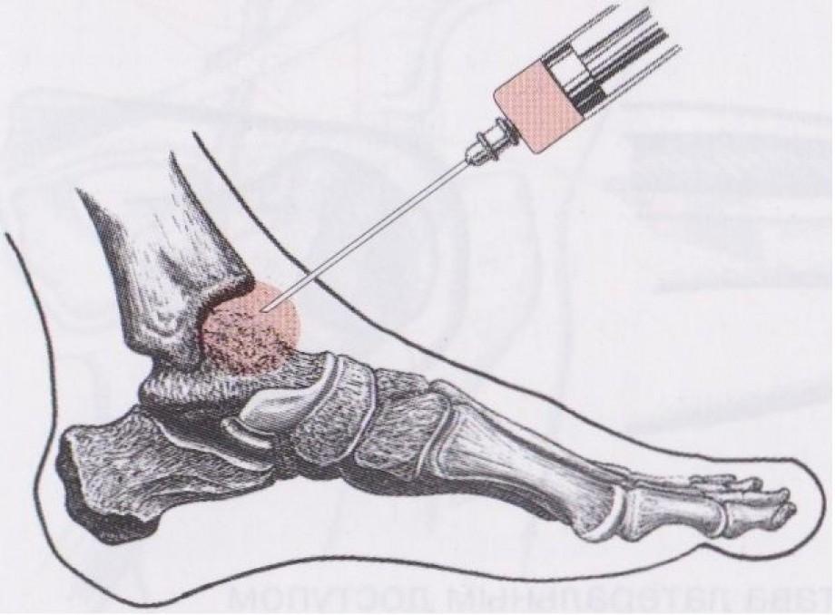 Методы лечения посттравматического артроза голеностопного сустава