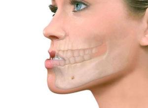 Привычный вывих челюсти кто лечил thumbnail