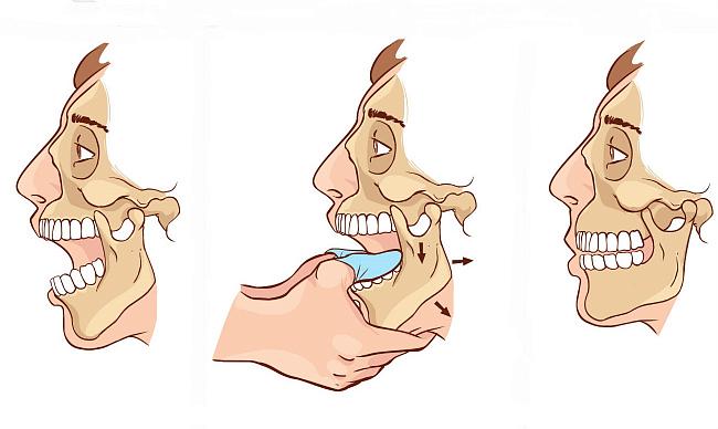 Методы вправления и реабилитация при вывихе челюсти