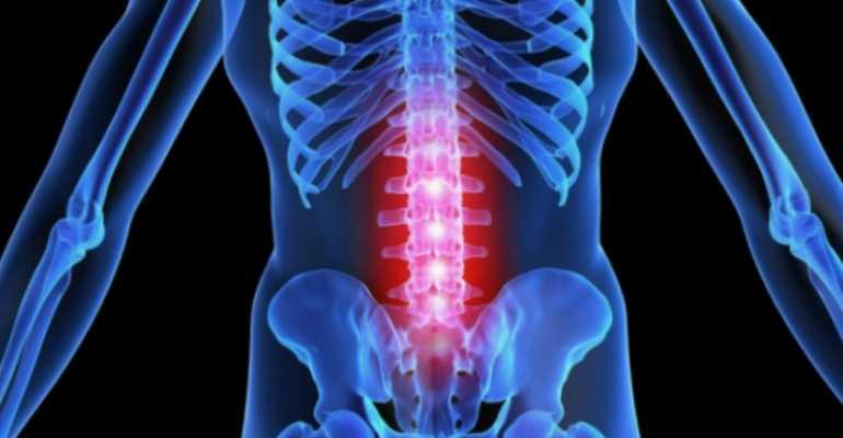 Метастазы в позвоночнике: симптомы, прогноз срока жизни, лечение