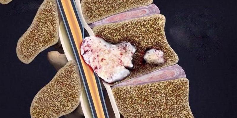 Насколько страшны метастазы в позвоночнике и как их лечить