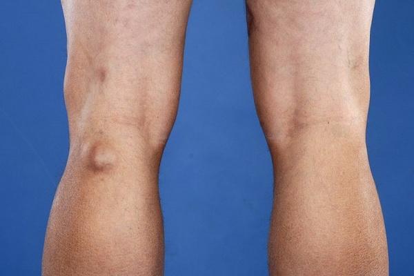 Основные причины появления грыж коленного сустава