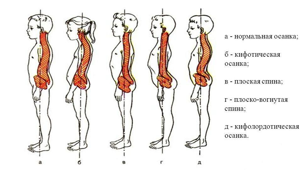 Основные признаки сколиотической осанки у детей и комплексное лечение